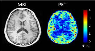 MRI and PET scan images
