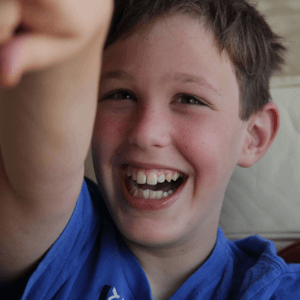 Happy smiling child with Fragile X syndrome